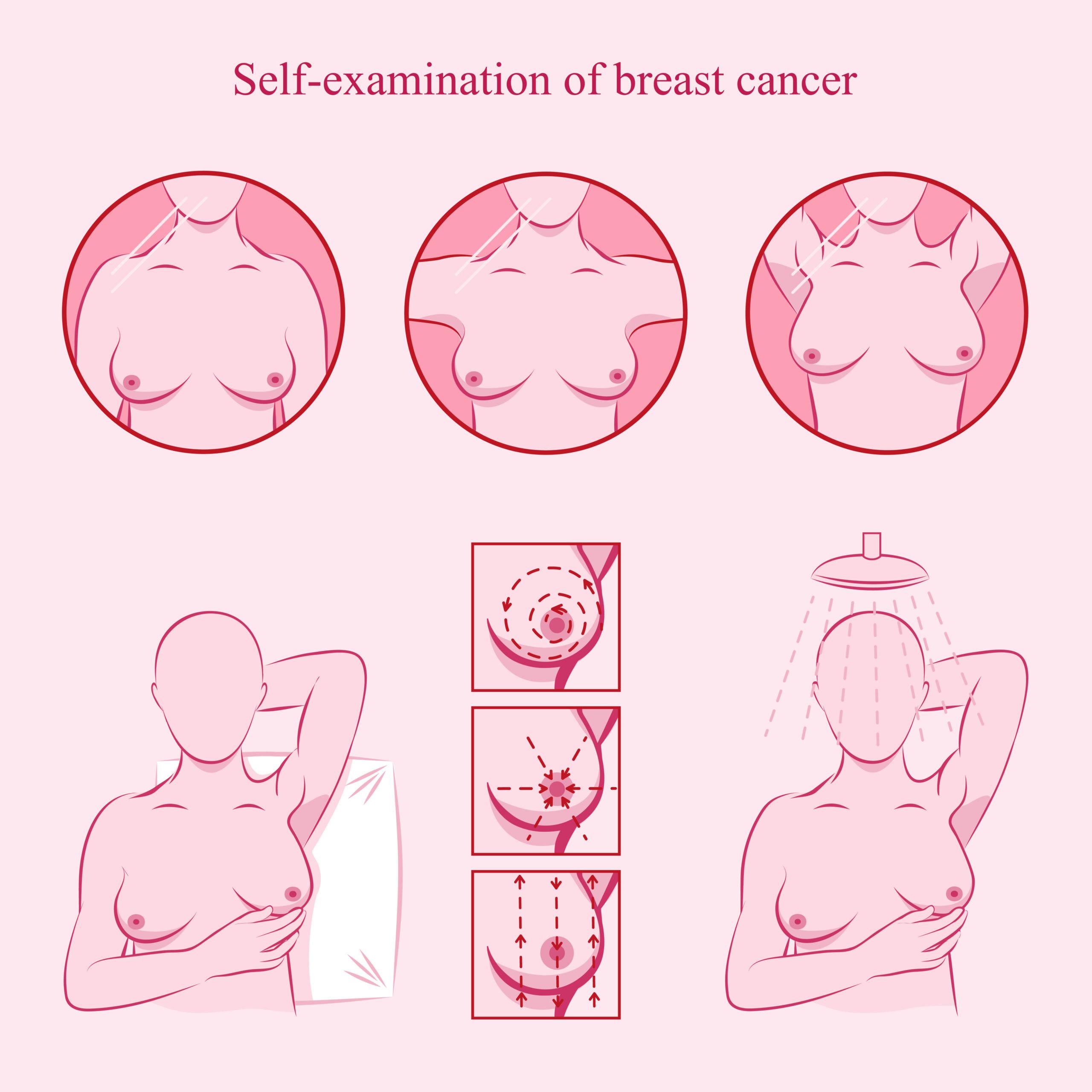 19 de octubre, día mundial contra el cáncer de mama. La autoexploración mamaria 1