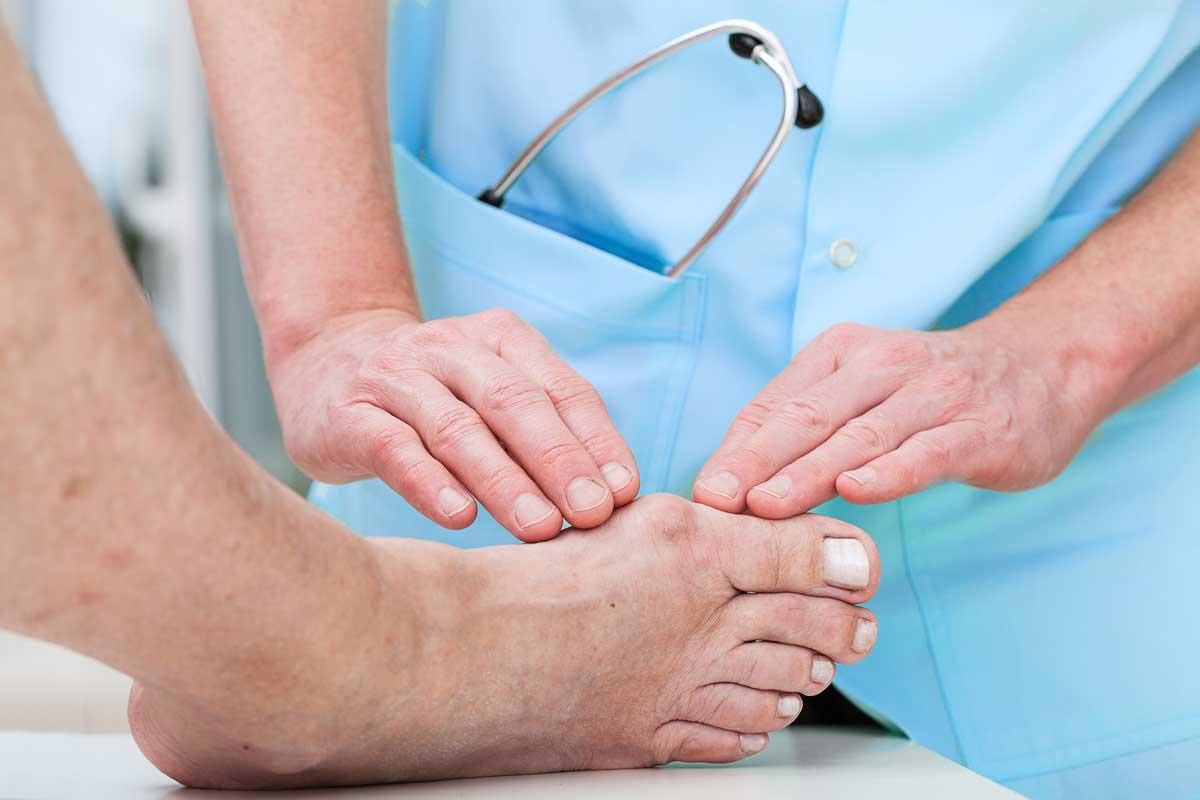 Cirurgia percutània per a les deformitats del peu