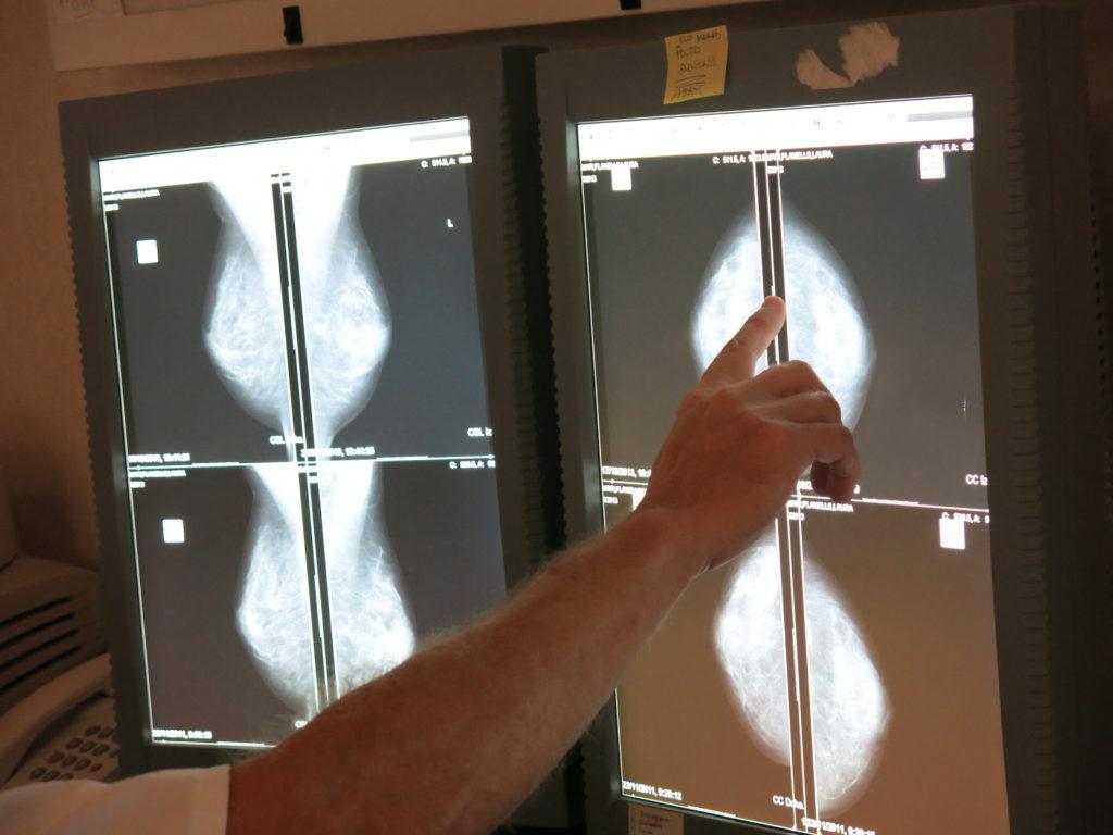 19 de octubre, día mundial contra el cáncer de mama 2