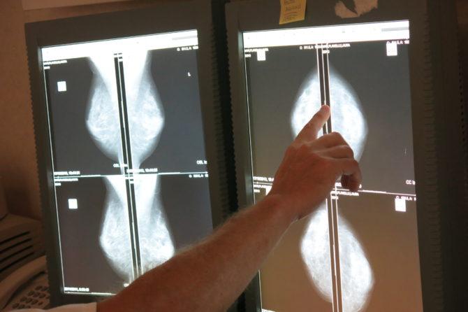 19 de octubre, día mundial contra el cáncer de mama 1
