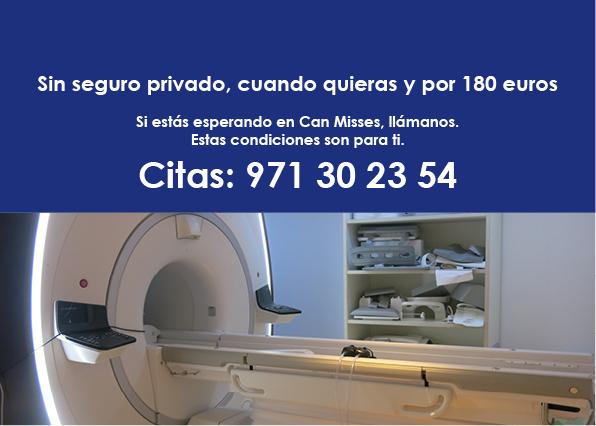 Resonancia magnética nuclear sin seguro privado, 180 € 2