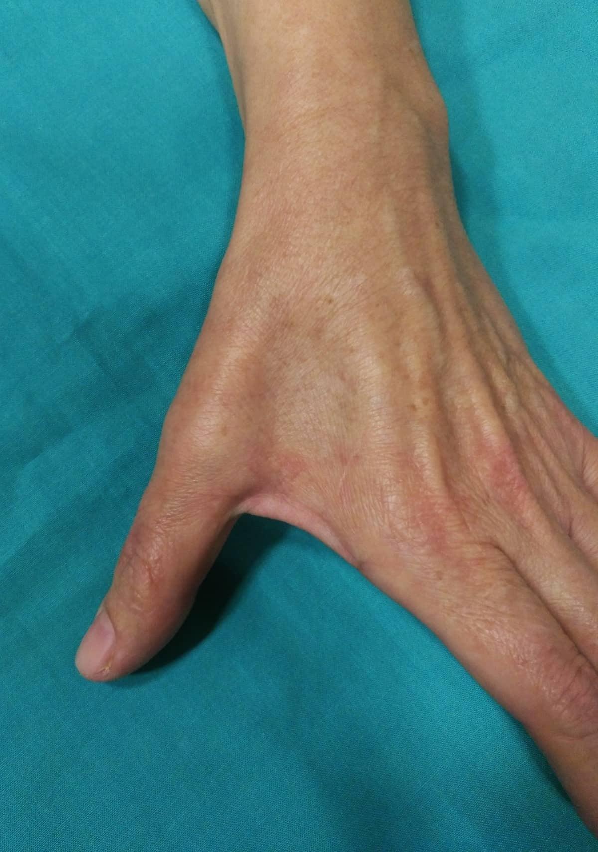 El covid-19 también puede dejar secuelas en la mano: Desde el dolor brusco del síndrome del túnel carpiano hasta la parálisis nerviosa. 3