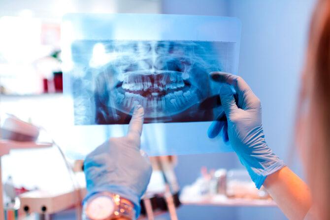 Dentistas y cirujanos advierten de los riesgos de demorar tratamientos por temor a contagio 1
